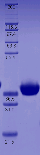 Proteros Product Image - ALK (human) (1081-1411)