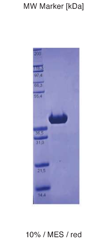 Proteros Product Image - ALK (human) (1081-1419)