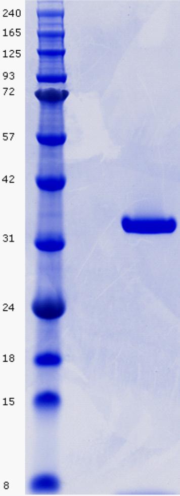 Proteros Product Image - Aurora B (Xenopus laevis) (78-356) (G96V) INCENP (Xenopus laevis) (790-847) complex