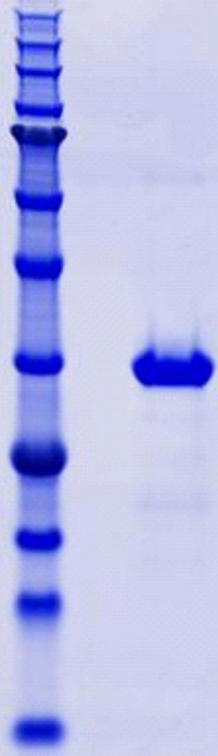 Proteros Product Image - B-Raf (human) (447-722)-p50 (1-378)