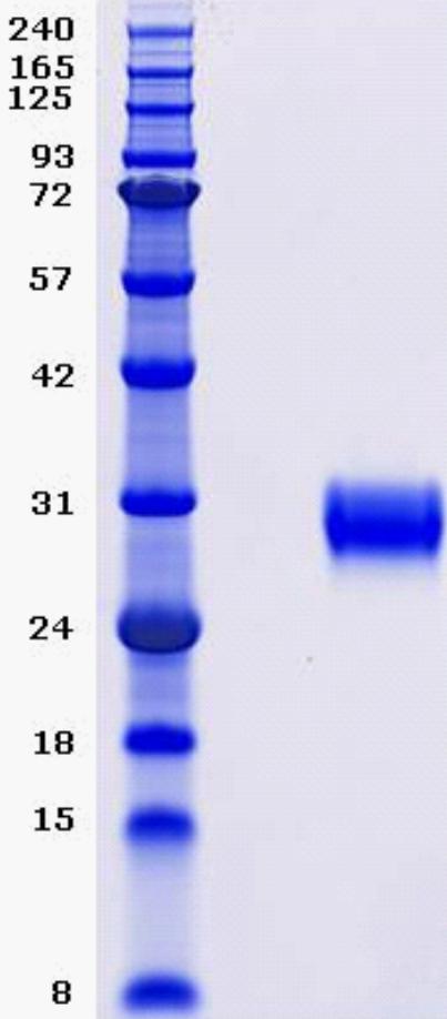 Proteros Product Image - BTK (human) (389-659)