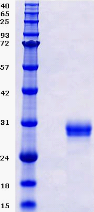Proteros Product Image - BTK (human) (389-659) (T474A)