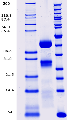 Proteros Product Image - Cathepsin D (human) (65-412)