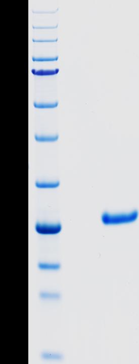Proteros Product Image - Cathepsin K (human) (115-329)