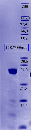 Proteros Product Image - Cathepsin L1 (human) (18-333) (T223A)