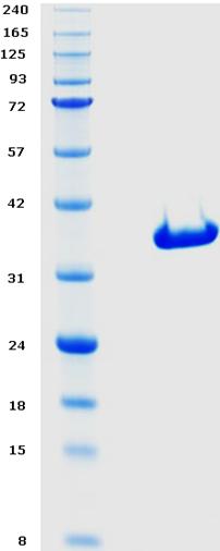 Proteros Product Image - c-Kit (human) (544-935) (694-753-TS)