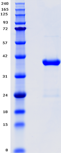 Proteros Product Image - EGFR kinase (human) (696-893) (T790M, L858R)