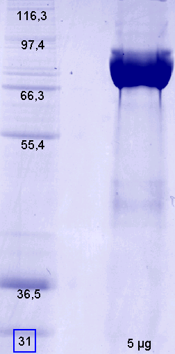 Proteros Product Image - FAPalpha (human) (38-760)