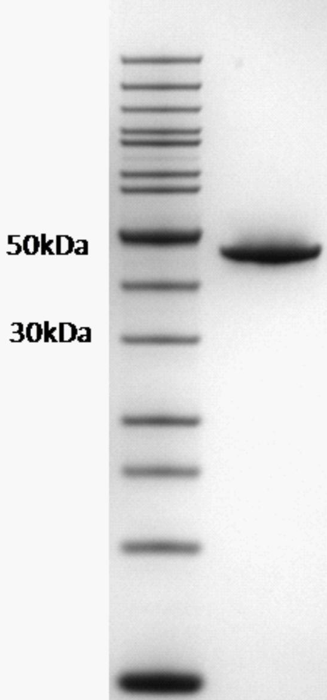Proteros Product Image - FES kinase (human) (412-822)