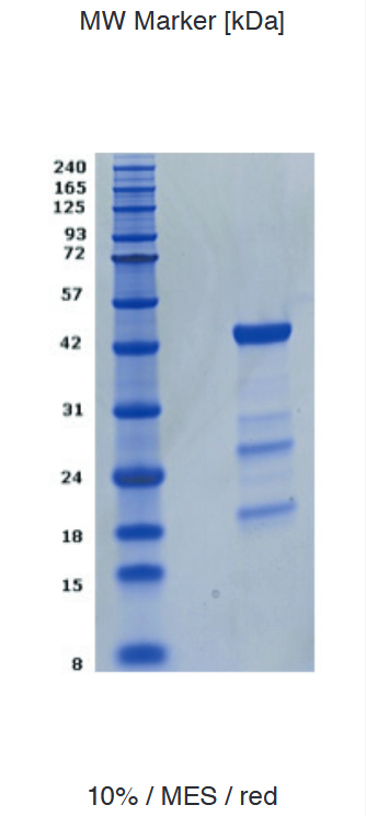 Proteros Product Image - JNK1 (human) (1-384)