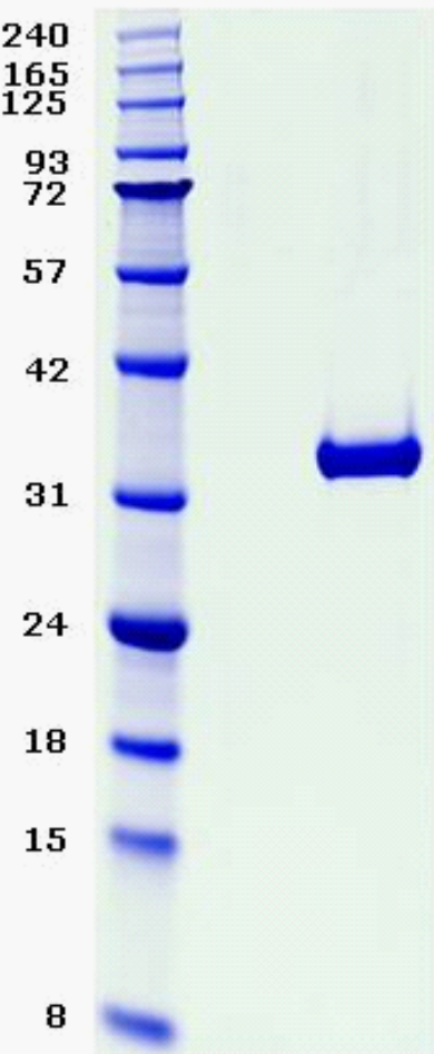 Proteros Product Image - KDR (human) (806-1171) Deletion (940-990)