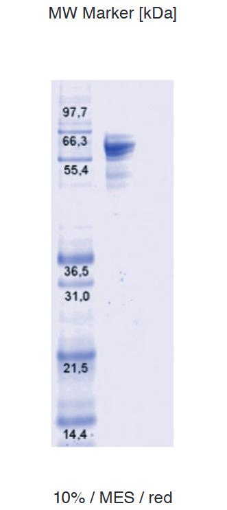 Proteros Product Image - DNA-Topoisomerase I (Pseudomonas aeruginosa) (1-595)