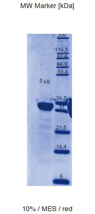 Proteros Product Image - c-Met (human) (1049-1349) (Y1234F, Y1235F)