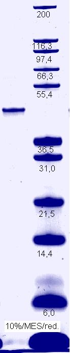 Proteros Product Image - eEF2Kinase (human) (2-370)
