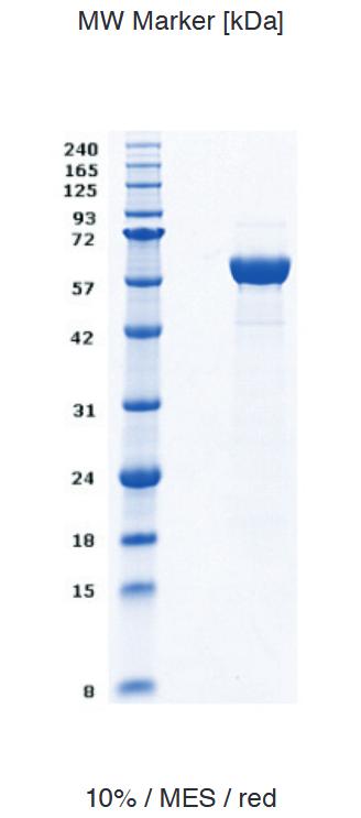 Proteros Product Image - EGFR Kinase, 696-1022 (human)