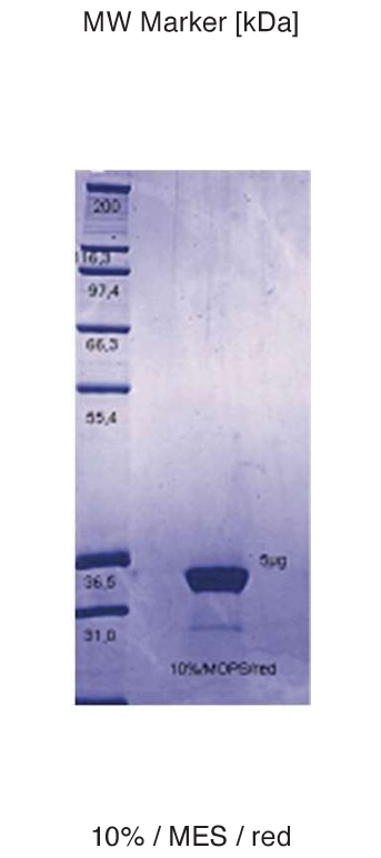 Proteros Product Image - ABL1 (human) (229-515)