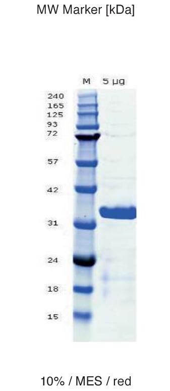 Proteros Product Image - C5 TE domain (human) (981-1306)